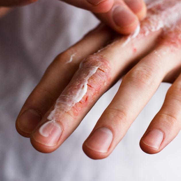 Jak zahojit ranku na kůži s lupénkou?